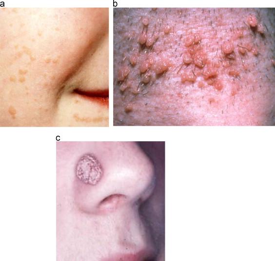 papillomavirus infection skin