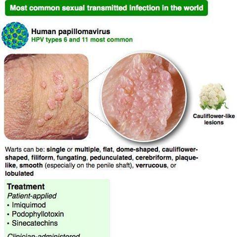 human papilloma lesions