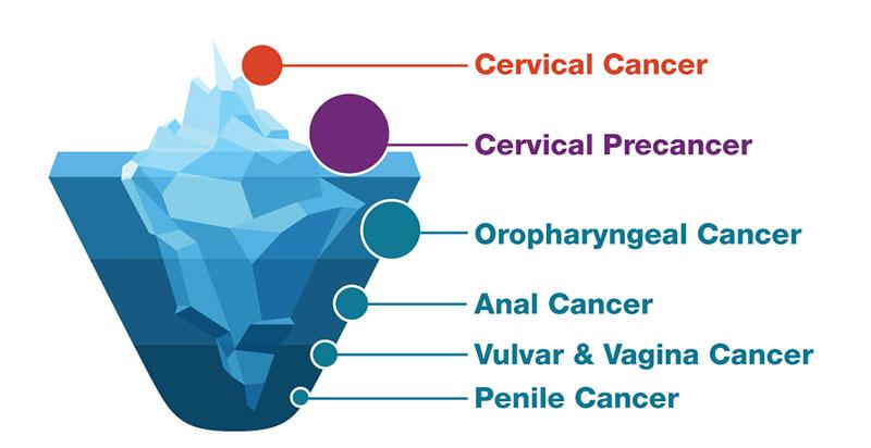 hpv cancer symptom