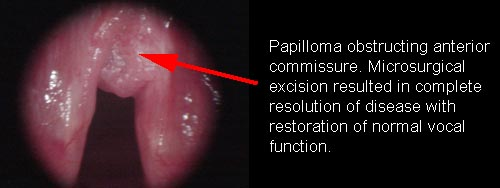 squamous papilloma of vocal cord