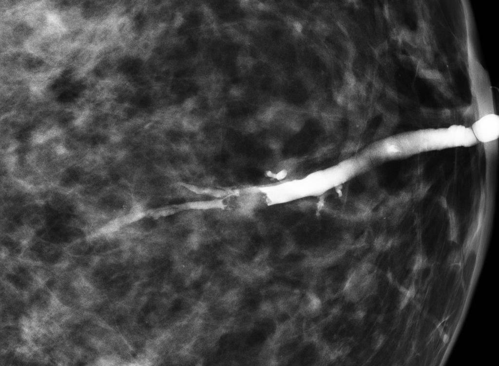 intraductal papilloma dna gat iritat tratament