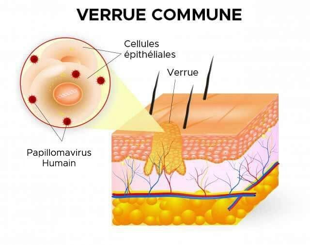 duct papilloma removal helminths immune activation