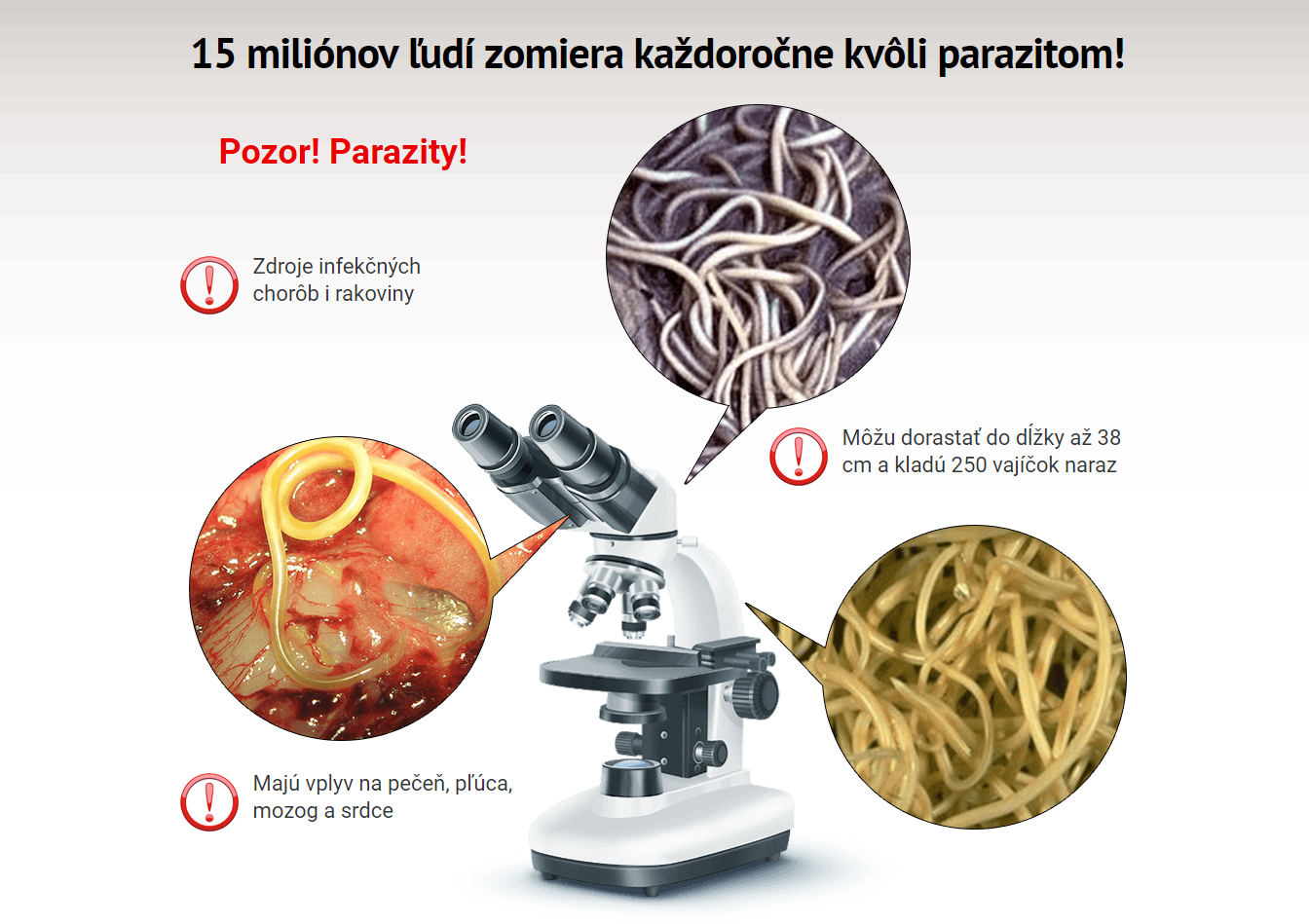 paraziti ve stolici priznaky cancer biliar etapa 4