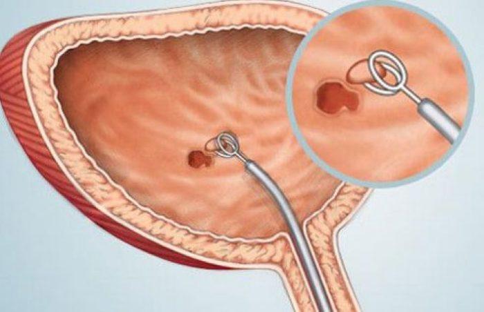cancerul vezica urinara hpv high risk other than 16/18