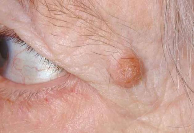 papilloma in eye