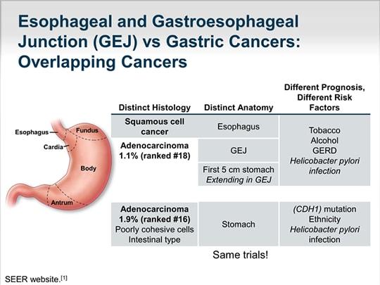 Cancer gastric ( neoplasmul gastric )