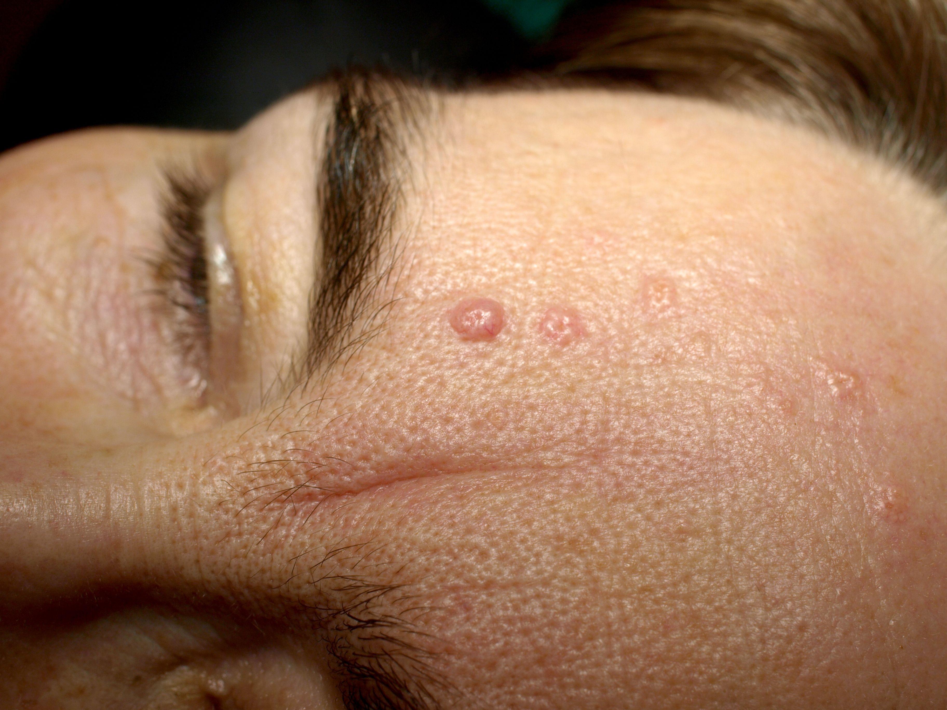 papilloma wart on scalp hpv strain penile cancer