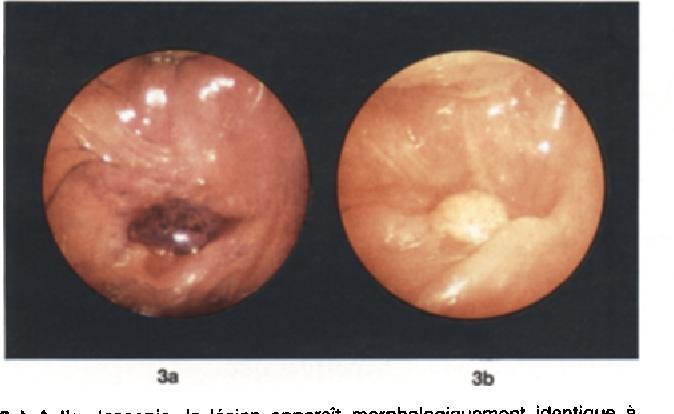 Varice ale corpului de col uterin