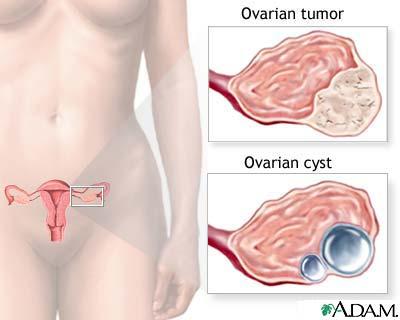 cancerul la ovare