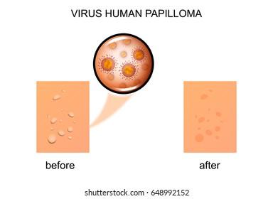 nhs human papillomavirus vaccine virus del papiloma humano en hombres en el ano