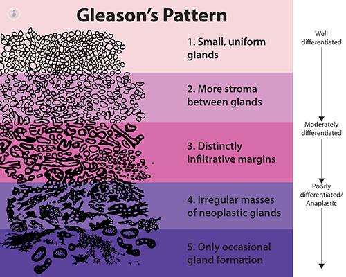 cancer de prostata gleason 7 enterobius vermicularis vs ascaris lumbricoides