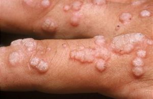 varon virus del papiloma humano en hombres