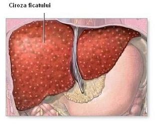 cancer pancreas org