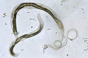 parazi?i intestinali parazitii intestinali si sarcina