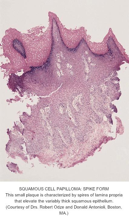 papilloma esophagus treatment