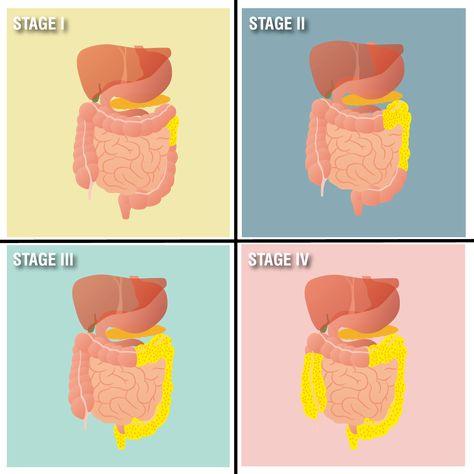 BCG-medac pulbere şi solvent pentru suspensie intravezicală - prospect