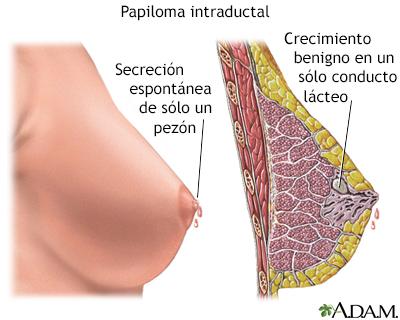 papiloma intraductal en las mamas helminth suffix meaning