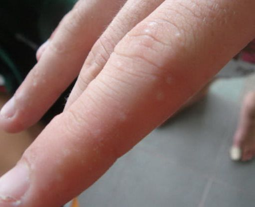 small warts on hands itchy