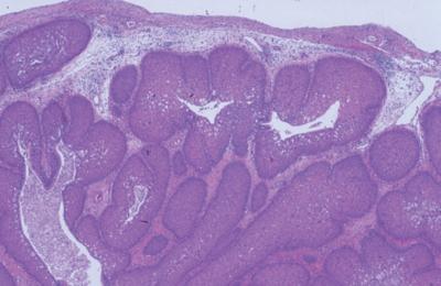 inverted papilloma exophytic