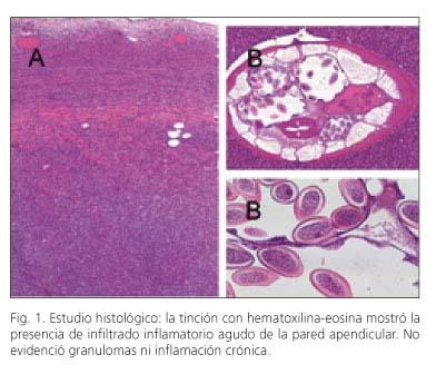 infeccion helmintica