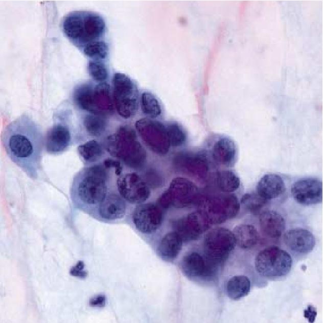 endometrial cancer on pap smear