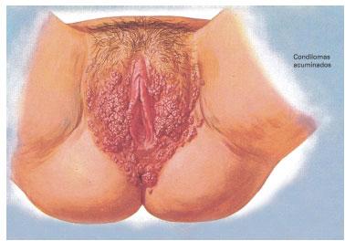papilloma virus bruciore