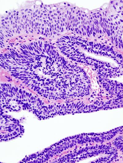 human papillomavirus dna testing virus papiloma humano diagnostico hombres