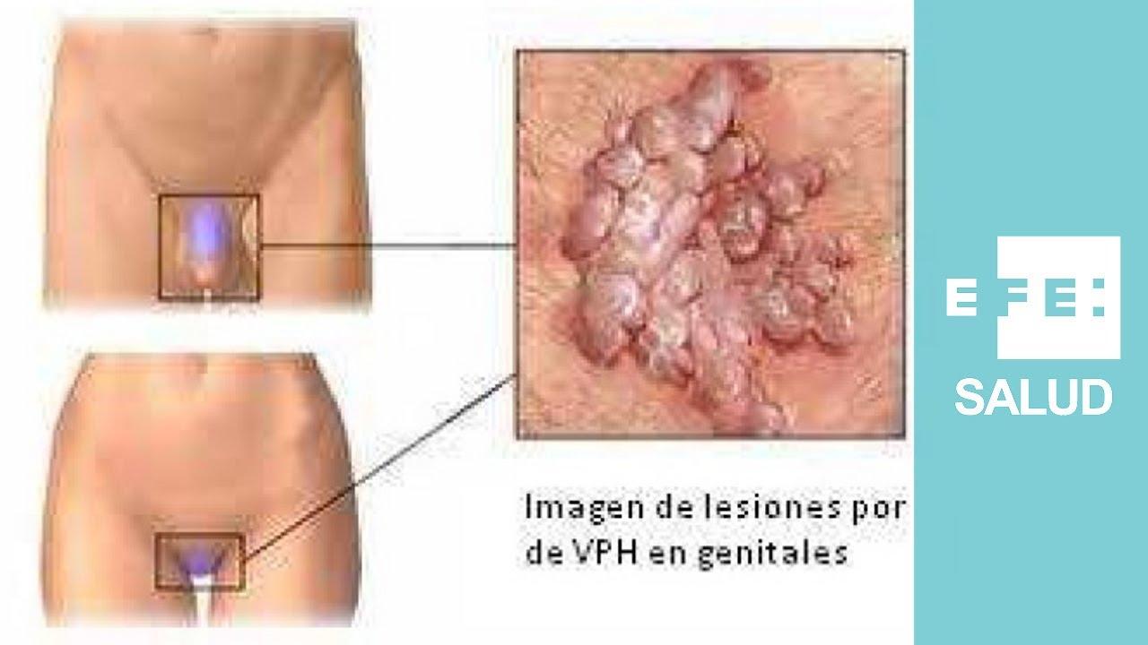hpv genital inicio
