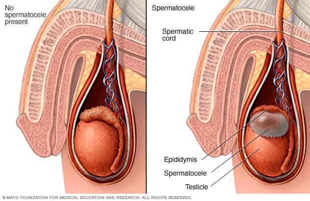 varicele pot fi pe cordonul spermatic)