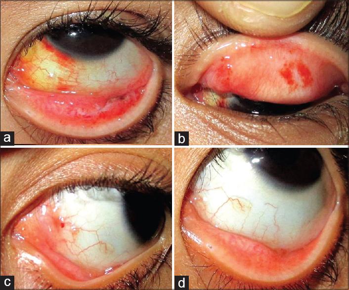 does hpv cause respiratory papillomatosis lesions papiloma humano en los hombres sintomas