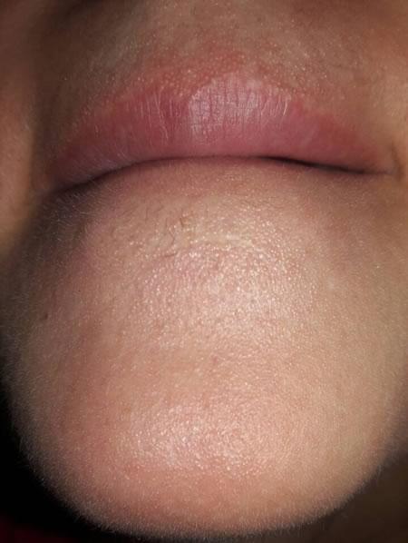 dermatita periorala
