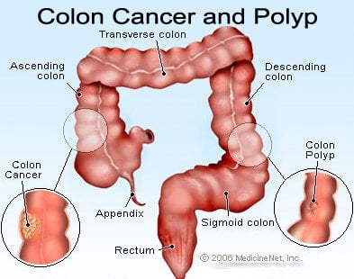 cancer colon bleeding