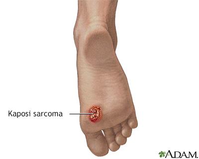 sarcoma cancer foot