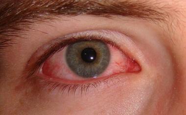 hpv pink eye