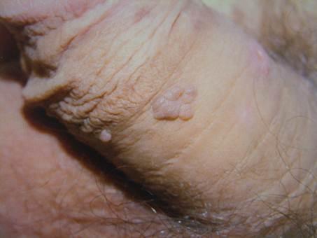 papilloma and cancer cancerul de col uterin