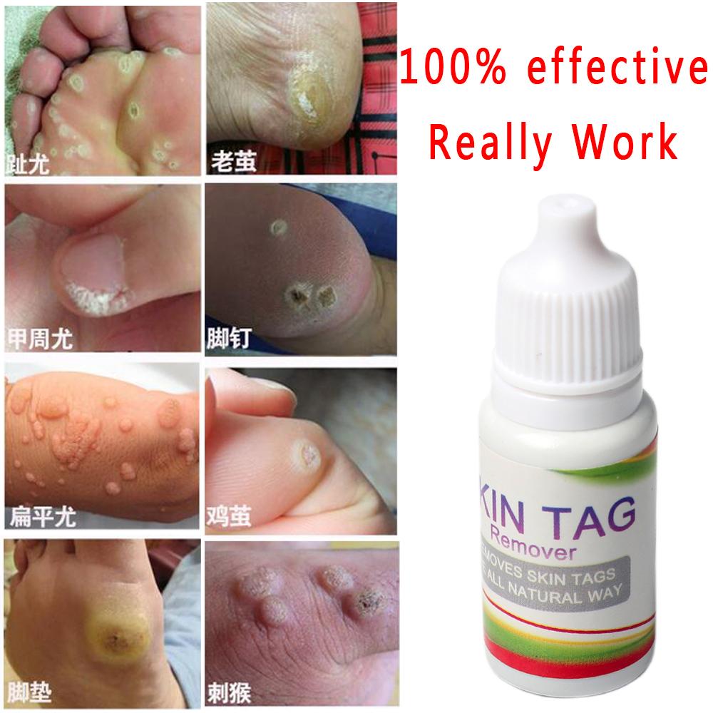 Skin Tag Remover 12 hours Tu kill Medical Tu kill Remover Skin Tag Mole & Genital Wart Remover 10ml