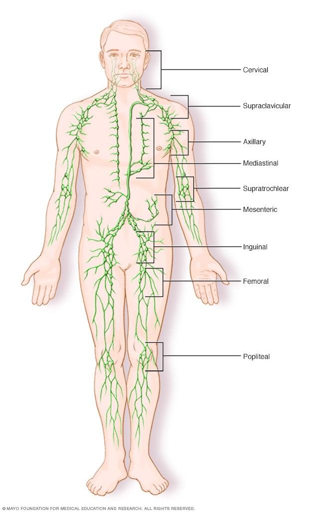 cancer linfatico hodgkin sintomas endometrial cancer peritoneal cytology