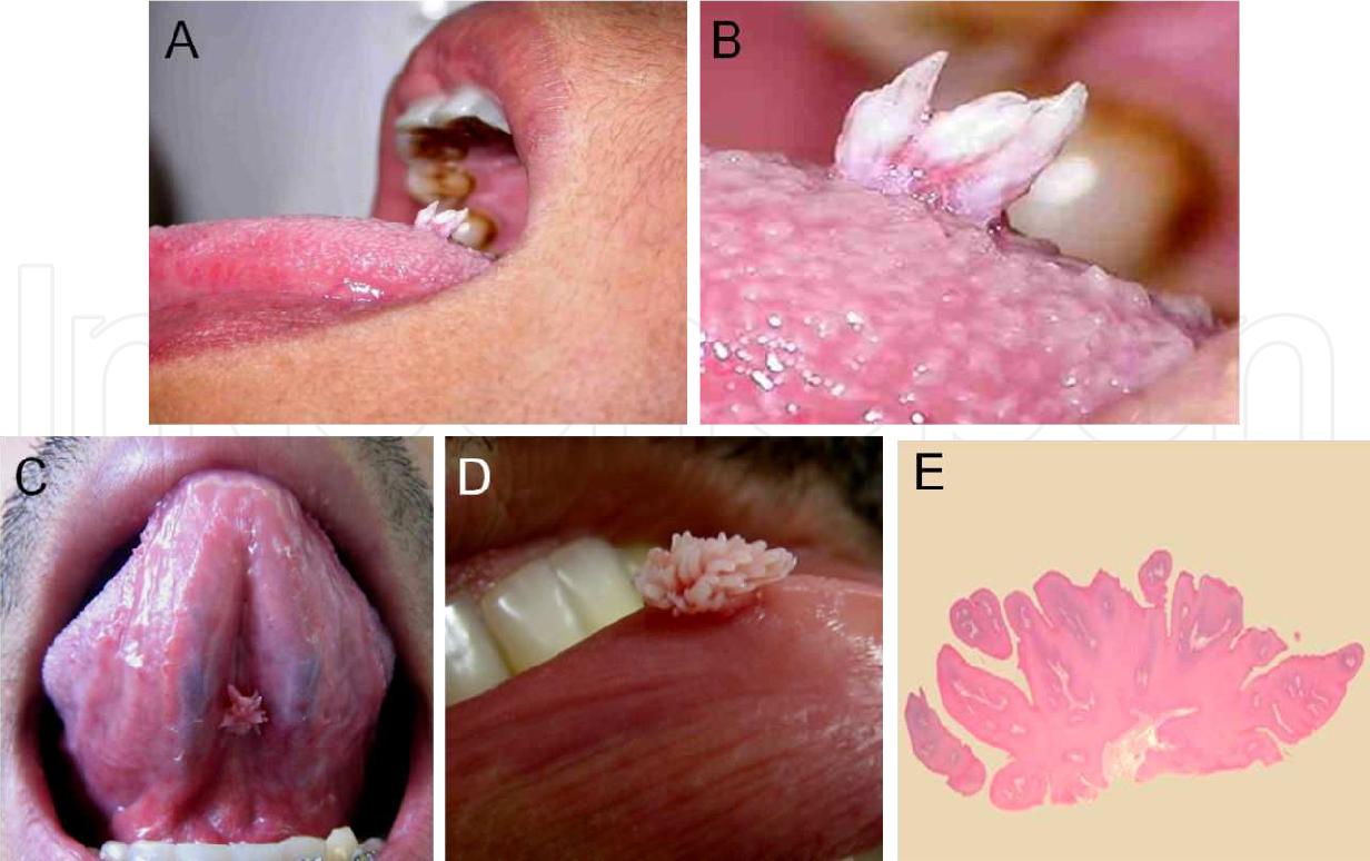 papiloma virus labial