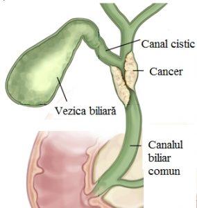 Tot ce trebuie sa stii despre cancerul veziculei biliare
