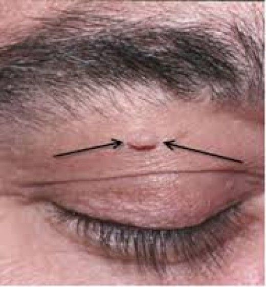 warts on your eyelid