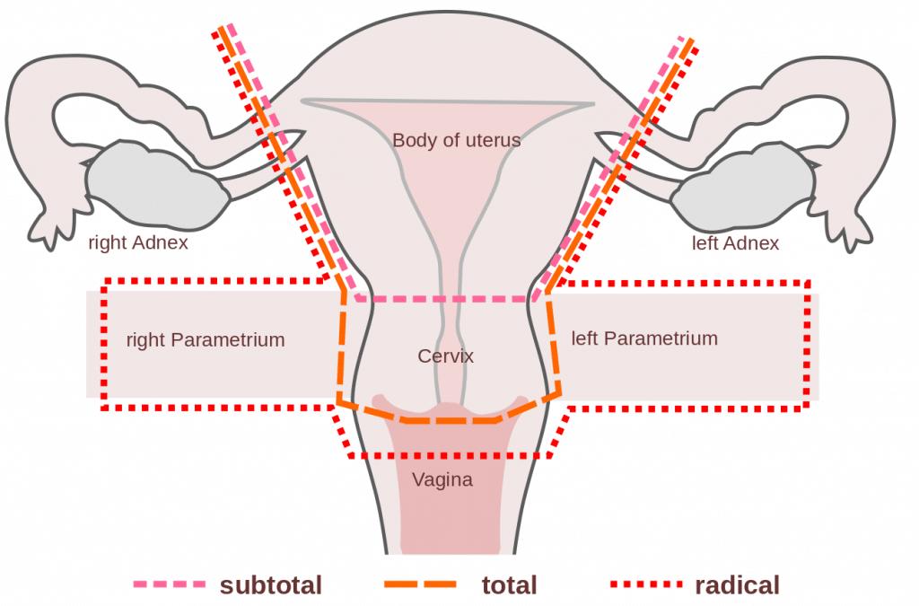 cervical cancer and hysterectomy papilloma virus e verruche plantari