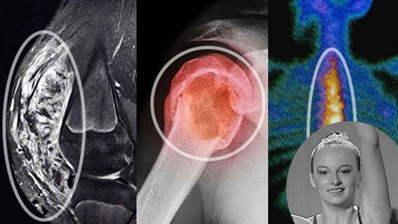 cancer osos la coloana vertebrala