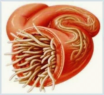 parazi?ii intestinali simptome
