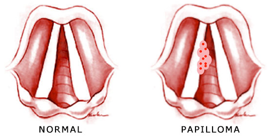papilloma laryngeal cancer