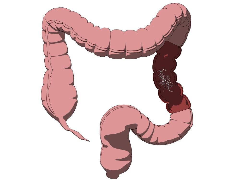 paraziti intestinali ameteala oxiuros imagenes