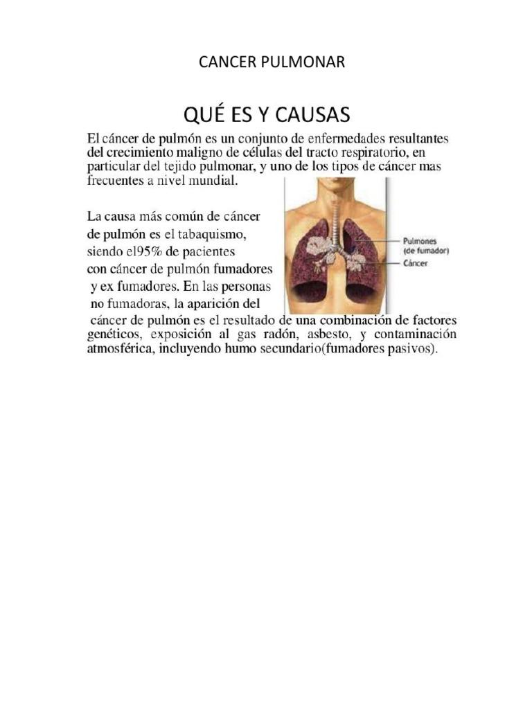Programul national de oncologie
