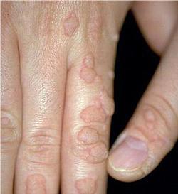 papillomavirus humain chez lhomme papilloma mellben