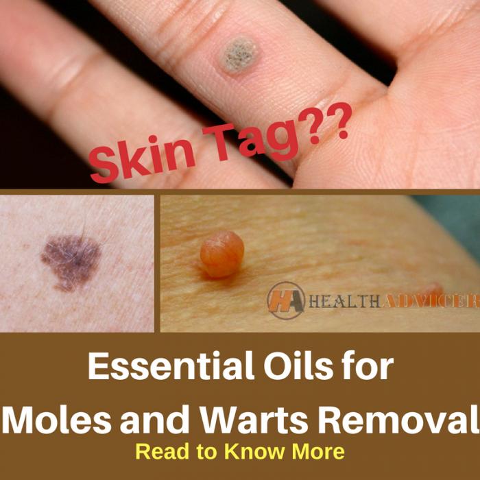 warts on hands essential oils cancerul osos secundar