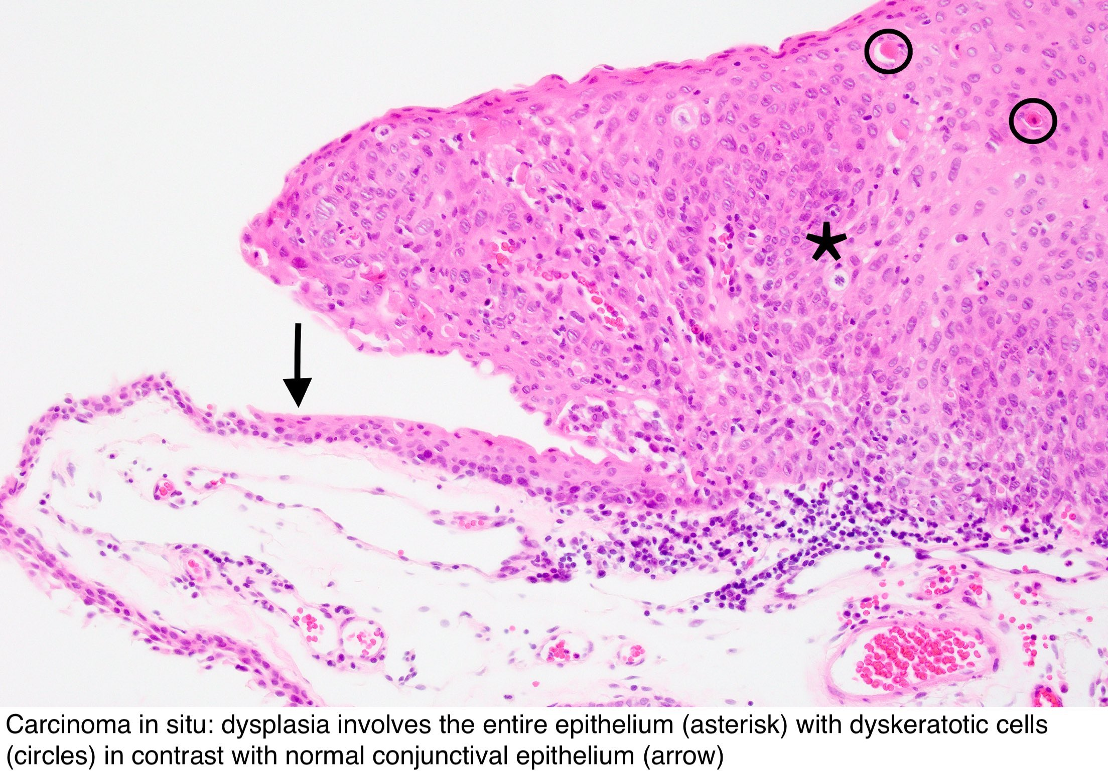 conjunctival papilloma histology cancer pulmonar inoperabil