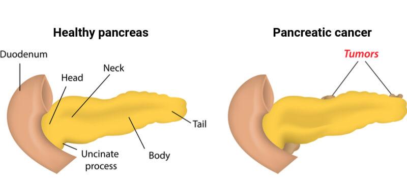 cancer pancreas vaccin
